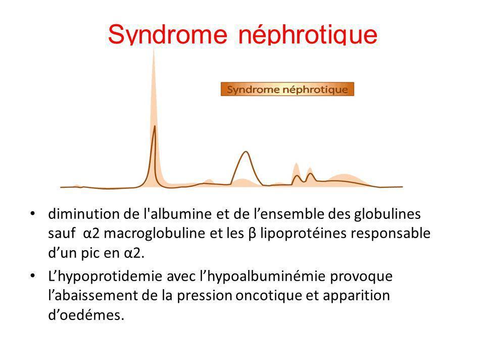 Syndrome néphrotique diminution de l'albumine et de lensemble des globulines sauf α2 macroglobuline et les β lipoprotéines responsable dun pic en α2.
