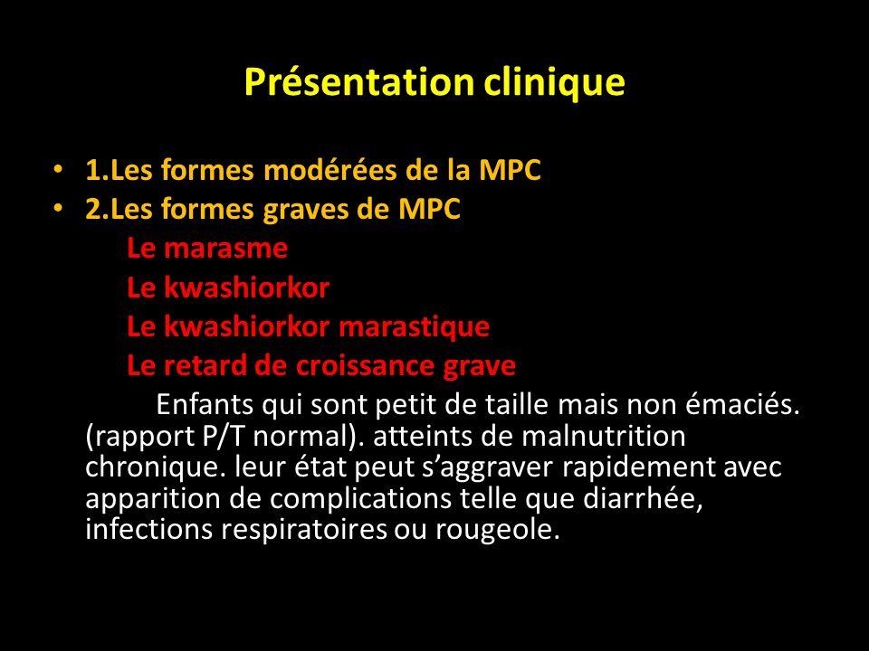 Présentation clinique 1.Les formes modérées de la MPC 2.Les formes graves de MPC Le marasme Le kwashiorkor Le kwashiorkor marastique Le retard de croi