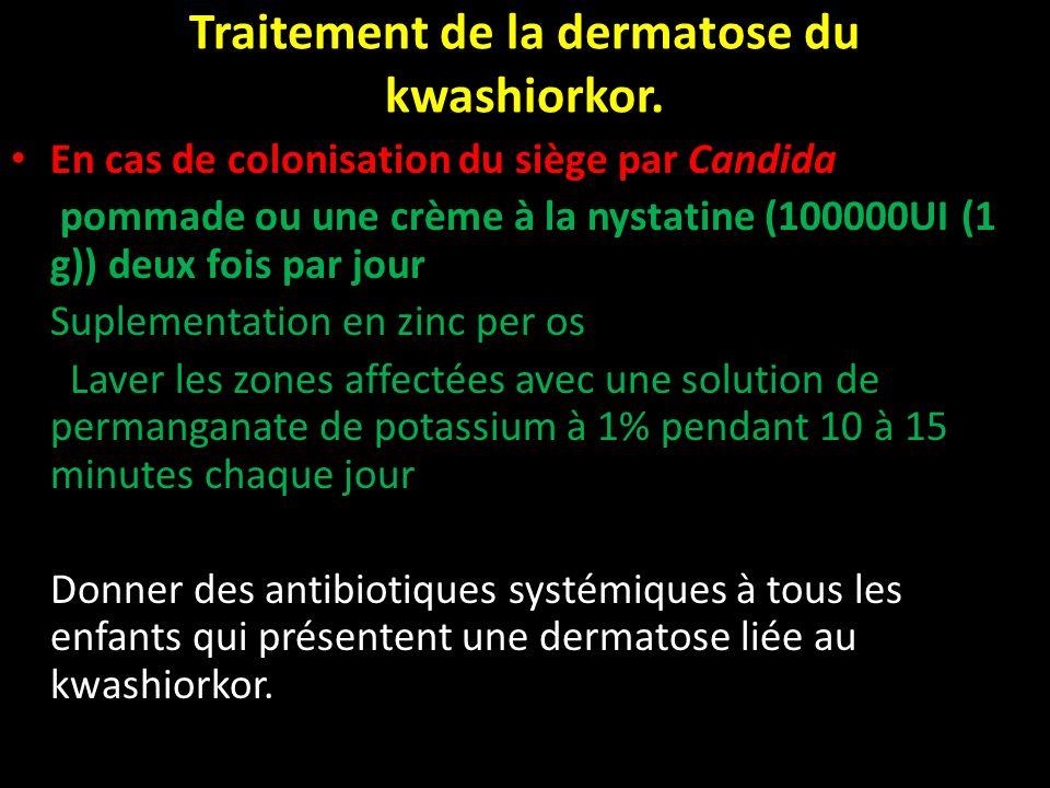 Traitement de la dermatose du kwashiorkor. En cas de colonisation du siège par Candida pommade ou une crème à la nystatine (100000UI (1 g)) deux fois