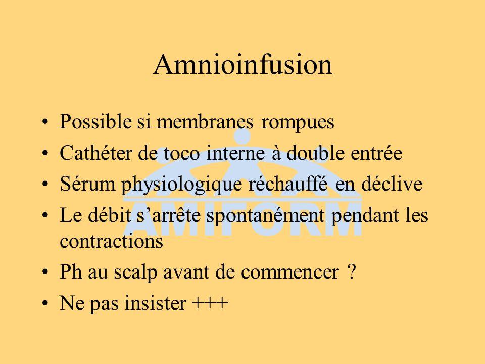 Amnioinfusion Possible si membranes rompues Cathéter de toco interne à double entrée Sérum physiologique réchauffé en déclive Le débit sarrête spontan