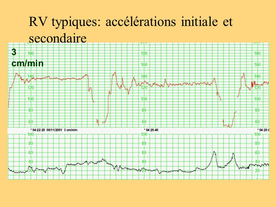 RV typiques: accélérations initiale et secondaire 3 cm/min