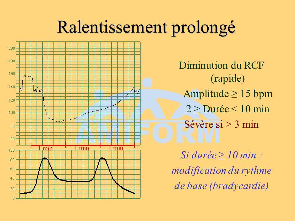 Ralentissement prolongé Diminution du RCF (rapide) Amplitude 15 bpm 2 Durée < 10 min Sévère si > 3 min Si durée 10 min : modification du rythme de bas