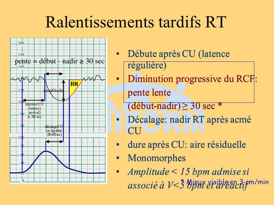 Débute après CU (latence régulière) Diminution progressive du RCF: pente lente (début-nadir) 30 sec * Décalage: nadir RT après acmé CU dure après CU:
