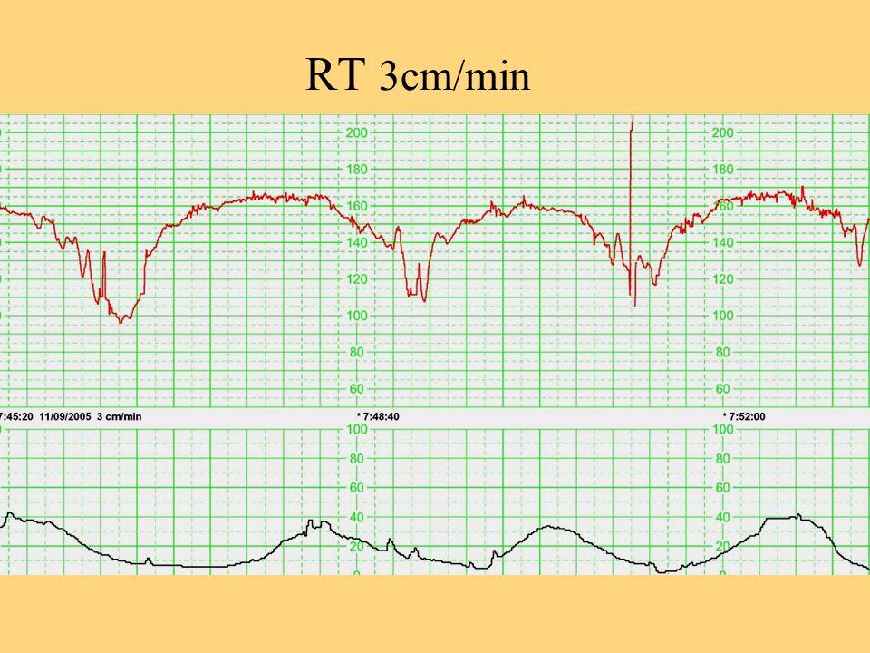 Bénéfices de loxygénothérapie Oxygénothérapie systématique est associée à une fréquence augmentée de pH bas (Grade B) Fawole B, Cochrane 2003 CD000136 Amélioration du pronostic néonatal en cas danomalies du RCF na pas été étudiée