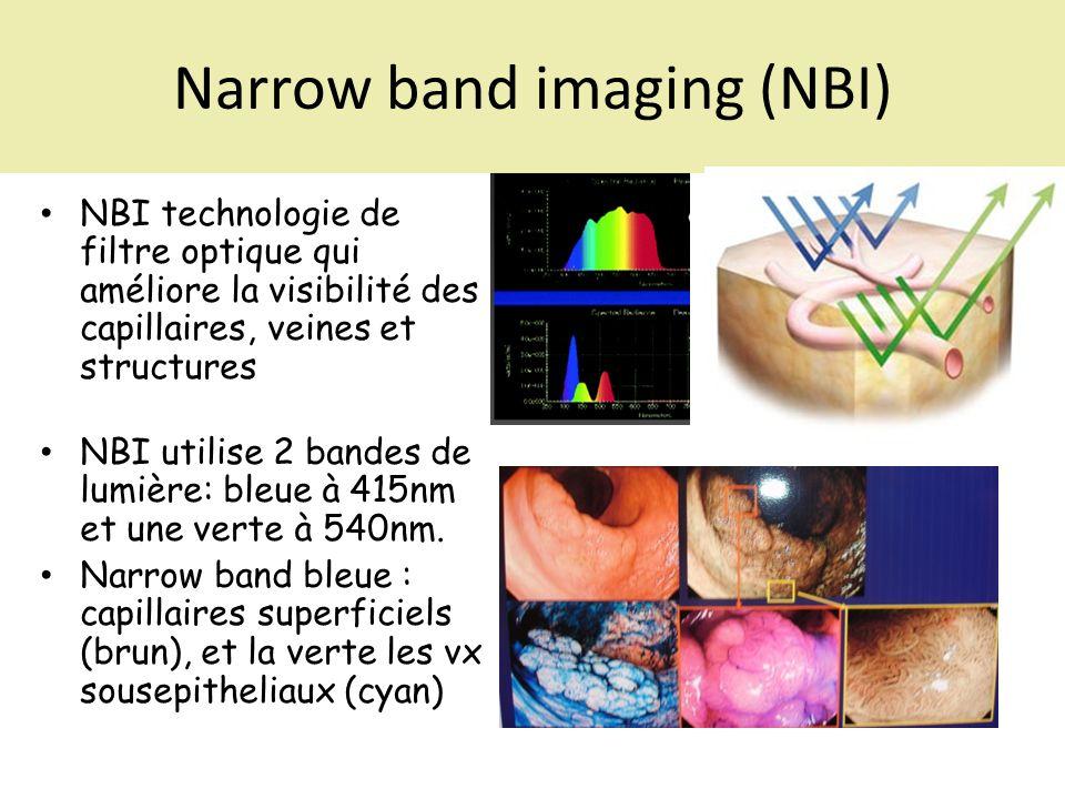 Narrow band imaging (NBI) NBI technologie de filtre optique qui améliore la visibilité des capillaires, veines et structures NBI utilise 2 bandes de l