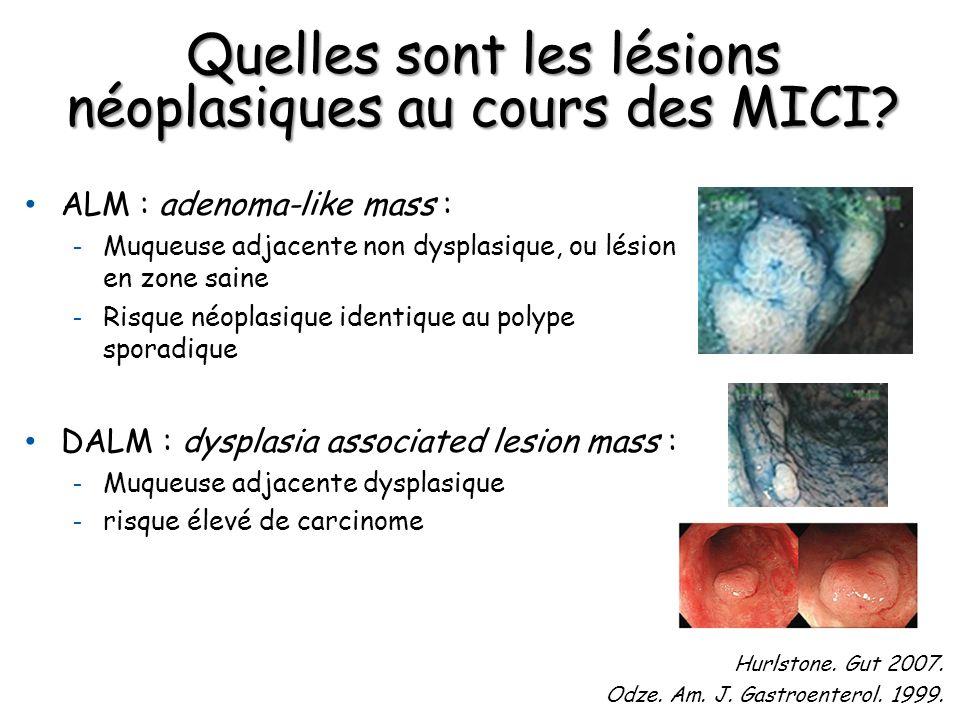 ALM : adenoma-like mass : - Muqueuse adjacente non dysplasique, ou lésion en zone saine - Risque néoplasique identique au polype sporadique DALM : dys