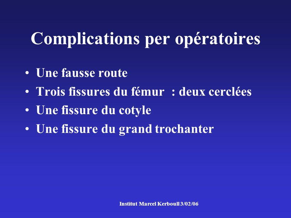 Institut Marcel Kerboull 3/02/06 Complications per opératoires Une fausse route Trois fissures du fémur : deux cerclées Une fissure du cotyle Une fissure du grand trochanter