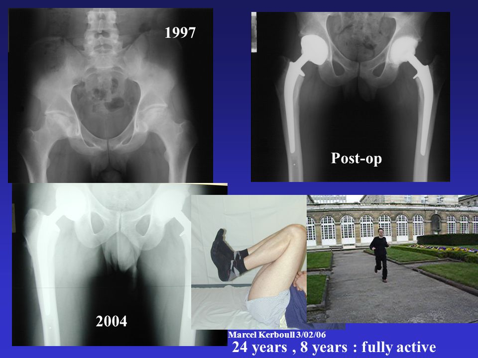 Institut Marcel Kerboull 3/02/06 1997 Post-op 2004 24 years, 8 years : fully active