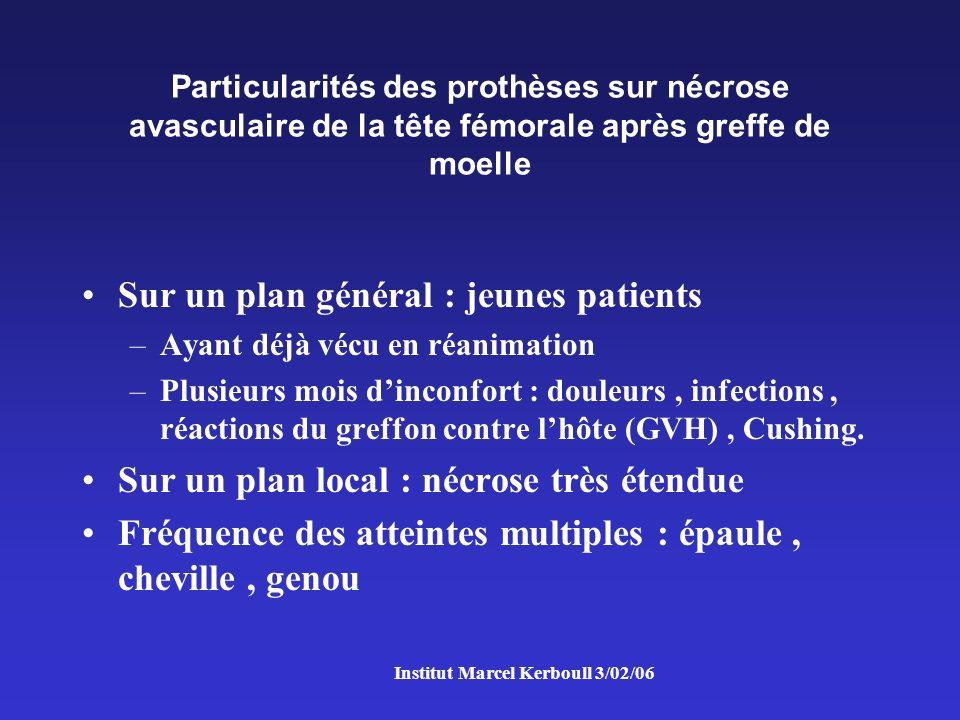 Institut Marcel Kerboull 3/02/06 Quelques exemples