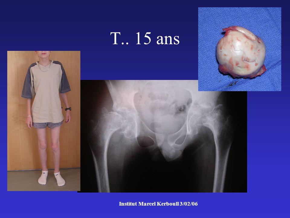 Institut Marcel Kerboull 3/02/06 T.. 15 ans