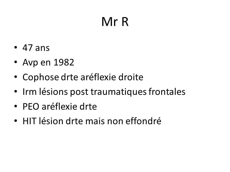 Mr R 47 ans Avp en 1982 Cophose drte aréflexie droite Irm lésions post traumatiques frontales PEO aréflexie drte HIT lésion drte mais non effondré