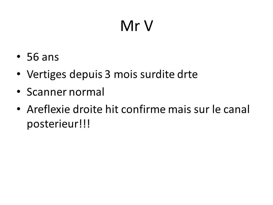 Mr V 56 ans Vertiges depuis 3 mois surdite drte Scanner normal Areflexie droite hit confirme mais sur le canal posterieur!!!