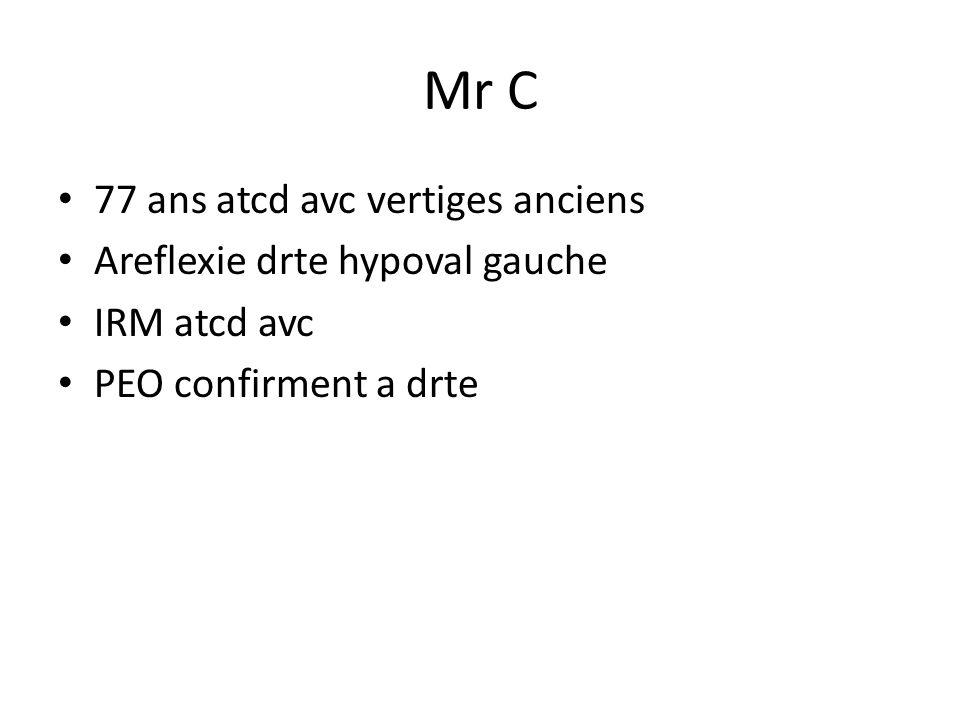 Mr C 77 ans atcd avc vertiges anciens Areflexie drte hypoval gauche IRM atcd avc PEO confirment a drte