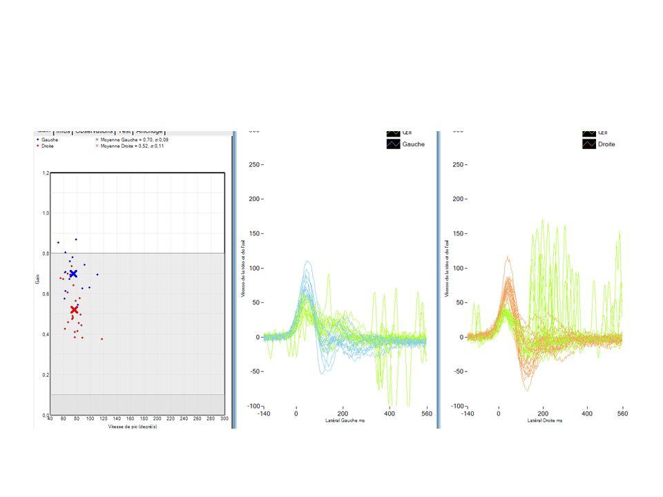 Mr B Grand vertige post opératoire sans hypoacousie sur otospongiose opérée en 2004 Bon résultat auditif à 9 ans!