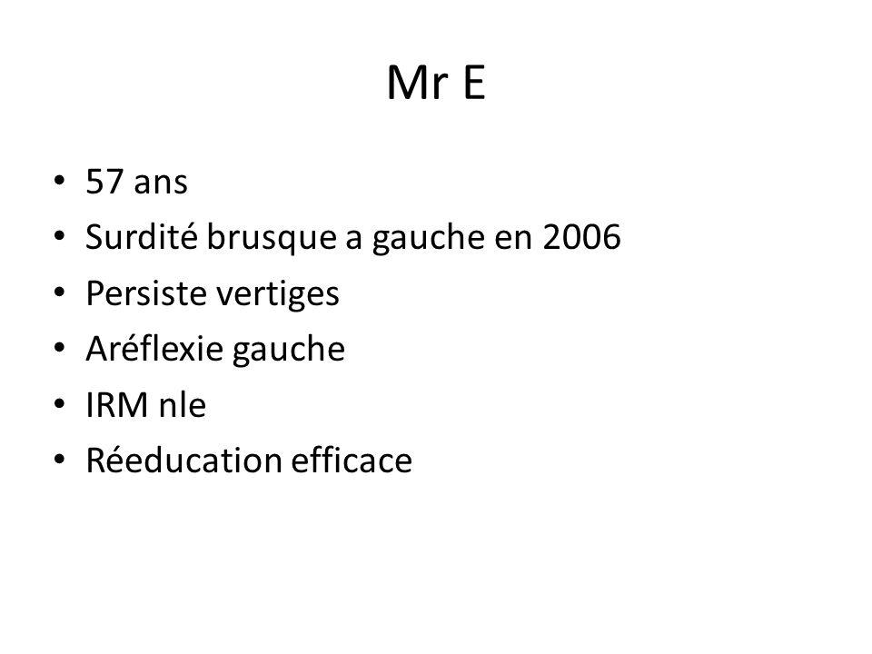 Mr E 57 ans Surdité brusque a gauche en 2006 Persiste vertiges Aréflexie gauche IRM nle Réeducation efficace