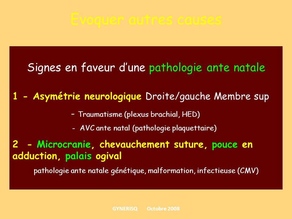 Evoquer autres causes Signes en faveur dune pathologie ante natale 1 - Asymétrie neurologique Droite/gauche Membre sup - Traumatisme (plexus brachial,