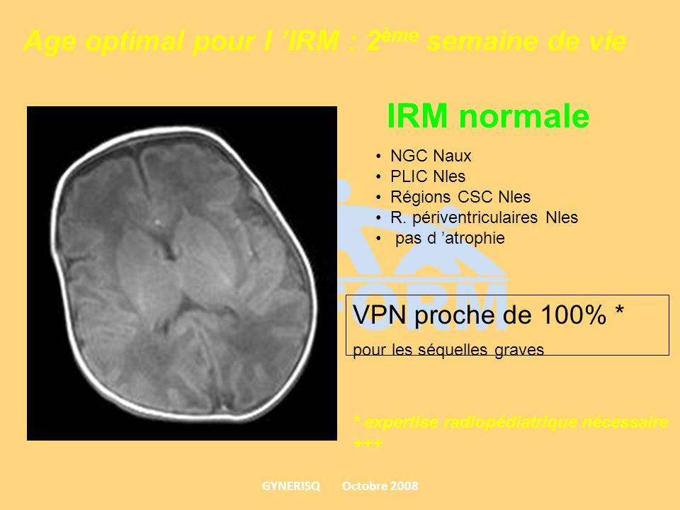 Age optimal pour l IRM : 2 ème semaine de vie NGC Naux PLIC Nles Régions CSC Nles R. périventriculaires Nles pas d atrophie IRM normale VPN proche de
