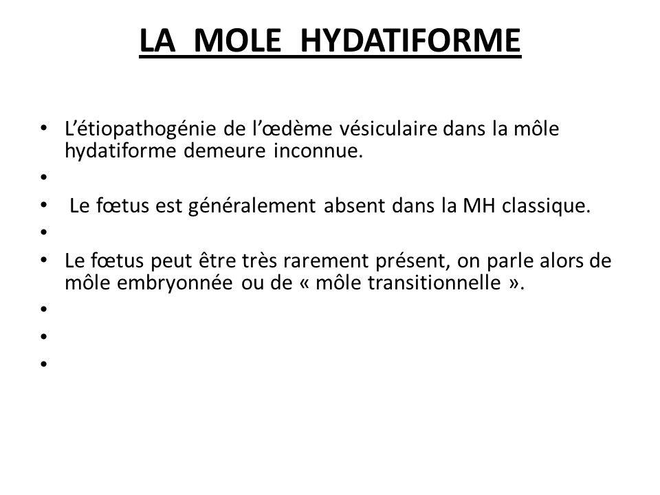 LA MOLE HYDATIFORME Létiopathogénie de lœdème vésiculaire dans la môle hydatiforme demeure inconnue.