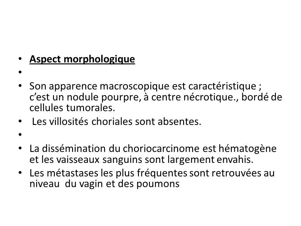Aspect morphologique Son apparence macroscopique est caractéristique ; cest un nodule pourpre, à centre nécrotique., bordé de cellules tumorales.