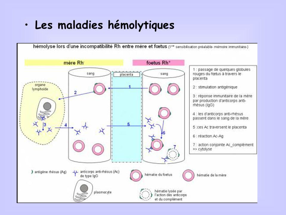 Les maladies hémolytiques