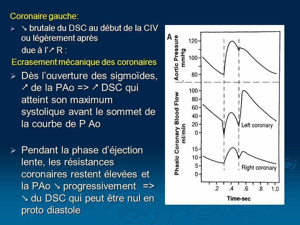 Coronaire gauche: brutale du DSC au début de la CIV ou légèrement après brutale du DSC au début de la CIV ou légèrement après due à l R : due à l R :