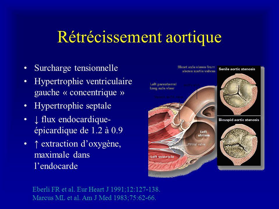 Rétrécissement aortique Surcharge tensionnelle Hypertrophie ventriculaire gauche « concentrique » Hypertrophie septale flux endocardique- épicardique