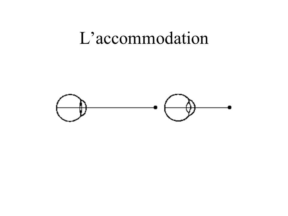 Laccommodation