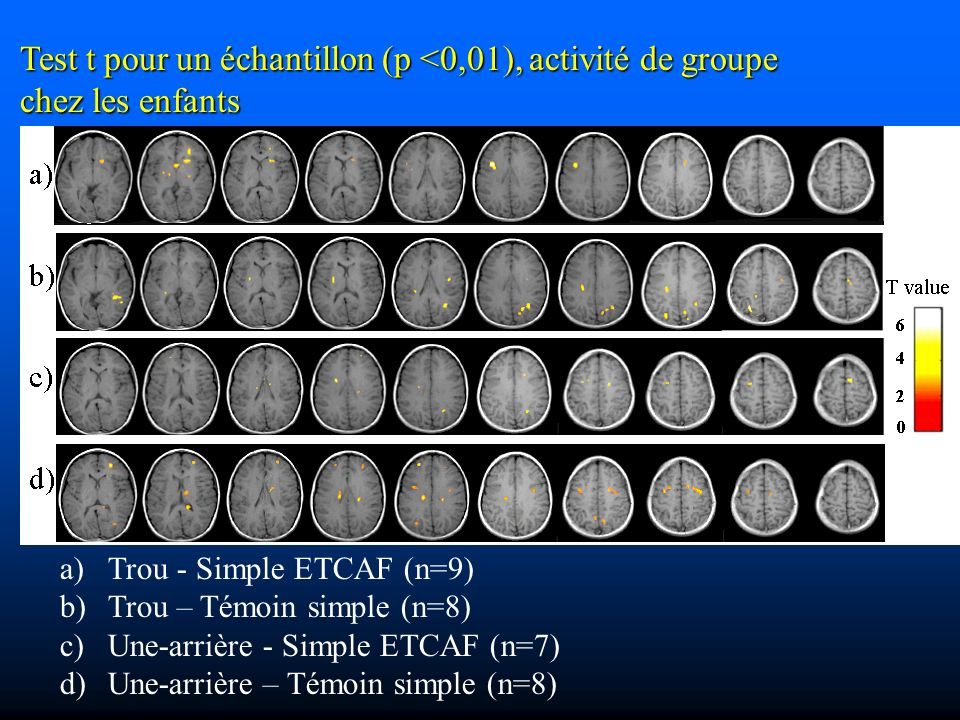 Test t pour un échantillon (p <0,01), activité de groupe chez les enfants a) a)Trou - Simple ETCAF (n=9) b) b)Trou – Témoin simple (n=8) c) c)Une-arrière - Simple ETCAF (n=7) d) d)Une-arrière – Témoin simple (n=8)