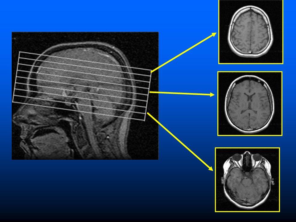 Objectifs : Déterminer la fonction cérébrale chez les enfants ou adultes atteints de lETCAF dans les domaines de lattention, de la mémoire spatiale et de la mémoire de travailDéterminer la fonction cérébrale chez les enfants ou adultes atteints de lETCAF dans les domaines de lattention, de la mémoire spatiale et de la mémoire de travail Mettre au point des techniques à base dIRM pour aider à diagnostiquer lETCAFMettre au point des techniques à base dIRM pour aider à diagnostiquer lETCAF Déterminer sil y a des régions de lactivité IRMf chez les sujets atteints de lETCAF par rapport aux sujets témoins à laide dun test de mémorisation immédiateDéterminer sil y a des régions de lactivité IRMf chez les sujets atteints de lETCAF par rapport aux sujets témoins à laide dun test de mémorisation immédiate
