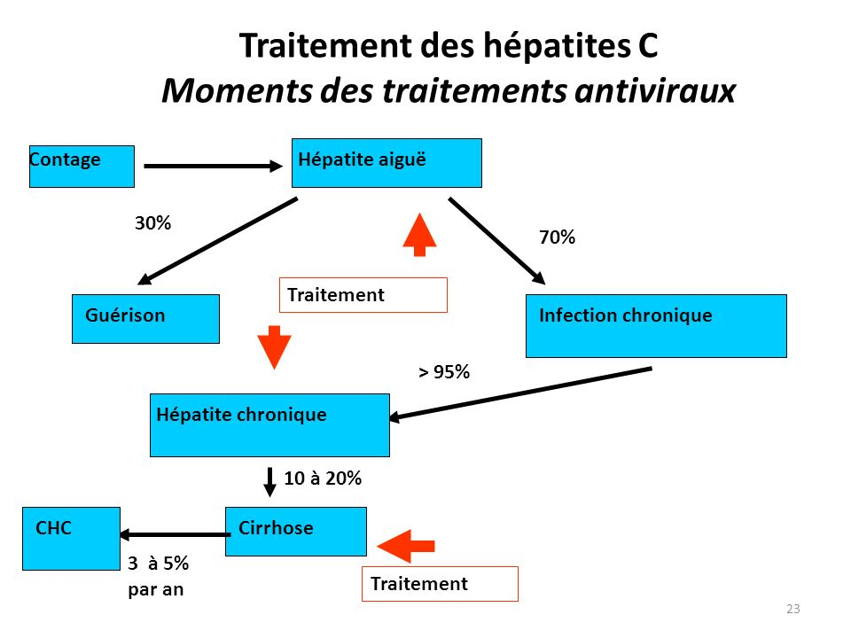 23 Traitement des hépatites C Moments des traitements antiviraux Contage Guérison 30% Infection chronique 70% > 95% Hépatite chronique Cirrhose 10 à 20% CHC 3 à 5% par an Hépatite aiguë Traitement