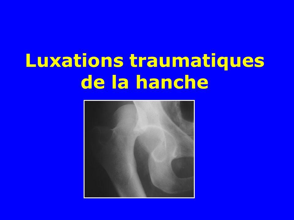Après une luxation postérieure de la hanche, la réduction doit être entreprise en urgence, comment doit-on faire .