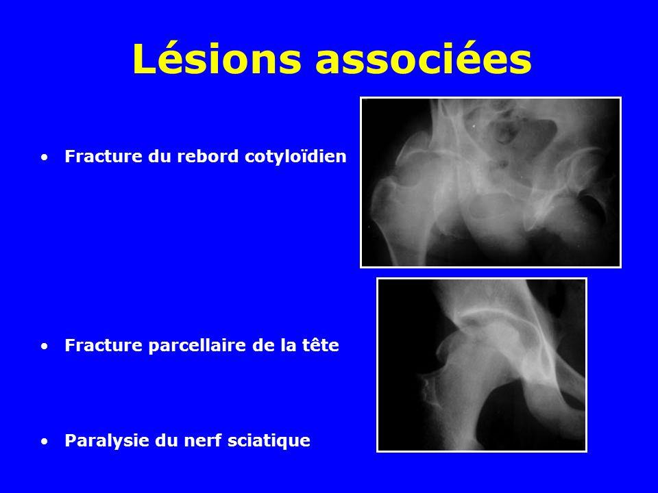 Lésions associées Fracture du rebord cotyloïdien Fracture parcellaire de la tête Paralysie du nerf sciatique