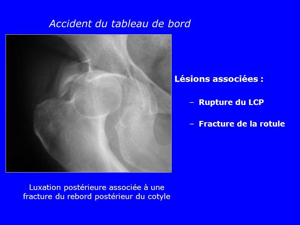 Luxation postérieure associée à une fracture du rebord postérieur du cotyle Accident du tableau de bord Lésions associées : –Rupture du LCP –Fracture