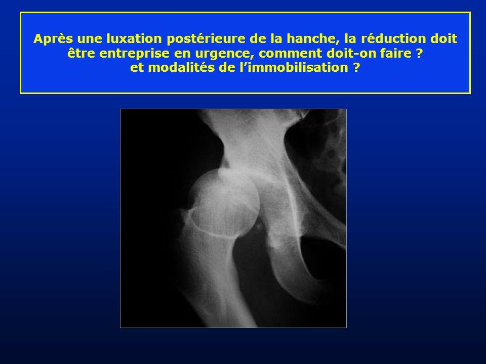 Après une luxation postérieure de la hanche, la réduction doit être entreprise en urgence, comment doit-on faire ? et modalités de limmobilisation ?