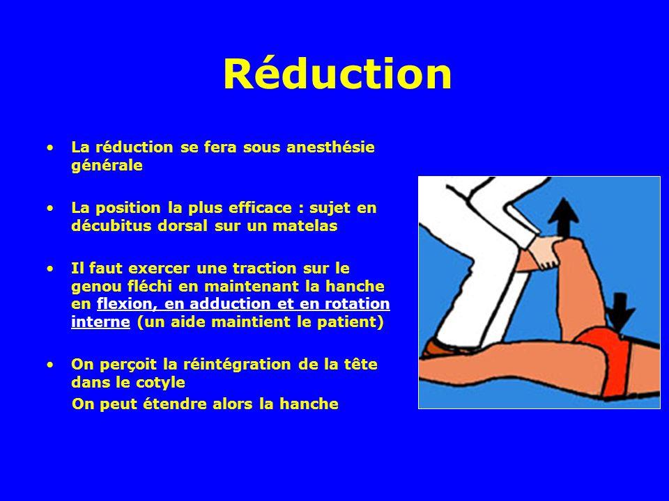 Réduction La réduction se fera sous anesthésie générale La position la plus efficace : sujet en décubitus dorsal sur un matelas Il faut exercer une tr