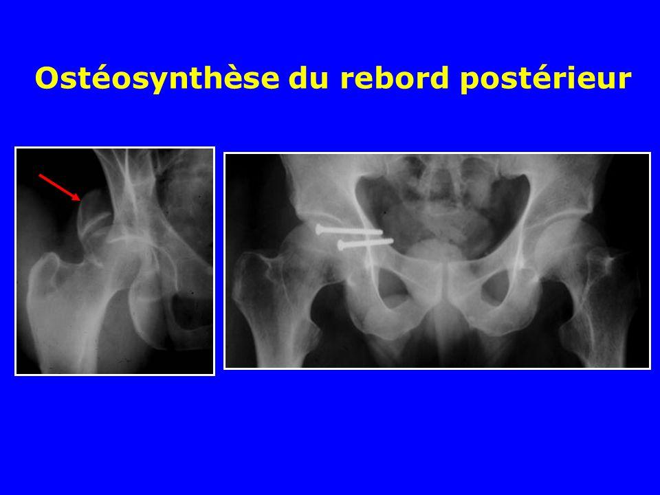 Ostéosynthèse du rebord postérieur