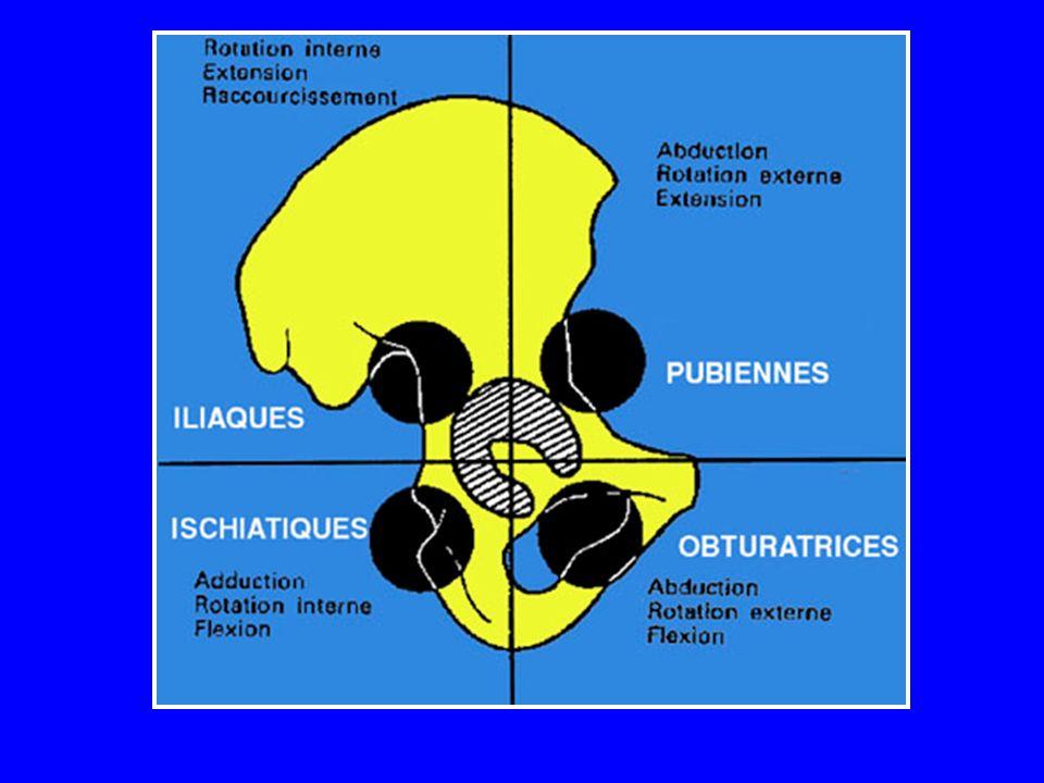 Réduction La réduction se fera sous anesthésie générale La position la plus efficace : sujet en décubitus dorsal sur un matelas Il faut exercer une traction sur le genou fléchi en maintenant la hanche en flexion, en adduction et en rotation interne (un aide maintient le patient) On perçoit la réintégration de la tête dans le cotyle On peut étendre alors la hanche