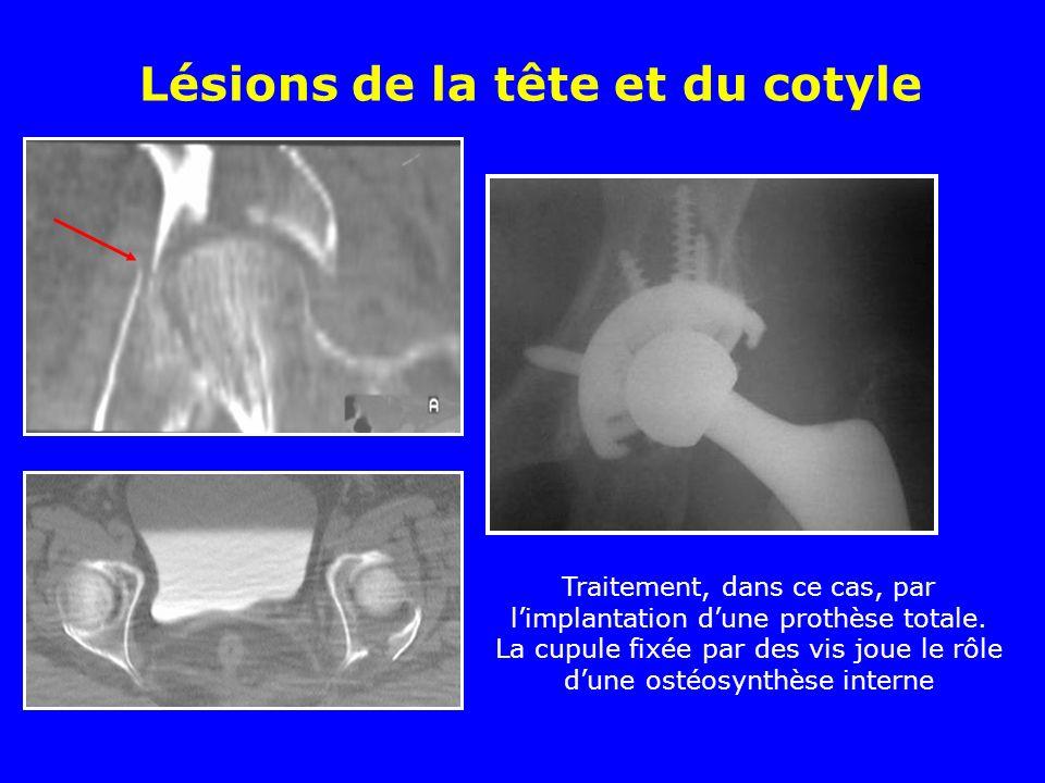 Lésions de la tête et du cotyle Traitement, dans ce cas, par limplantation dune prothèse totale. La cupule fixée par des vis joue le rôle dune ostéosy