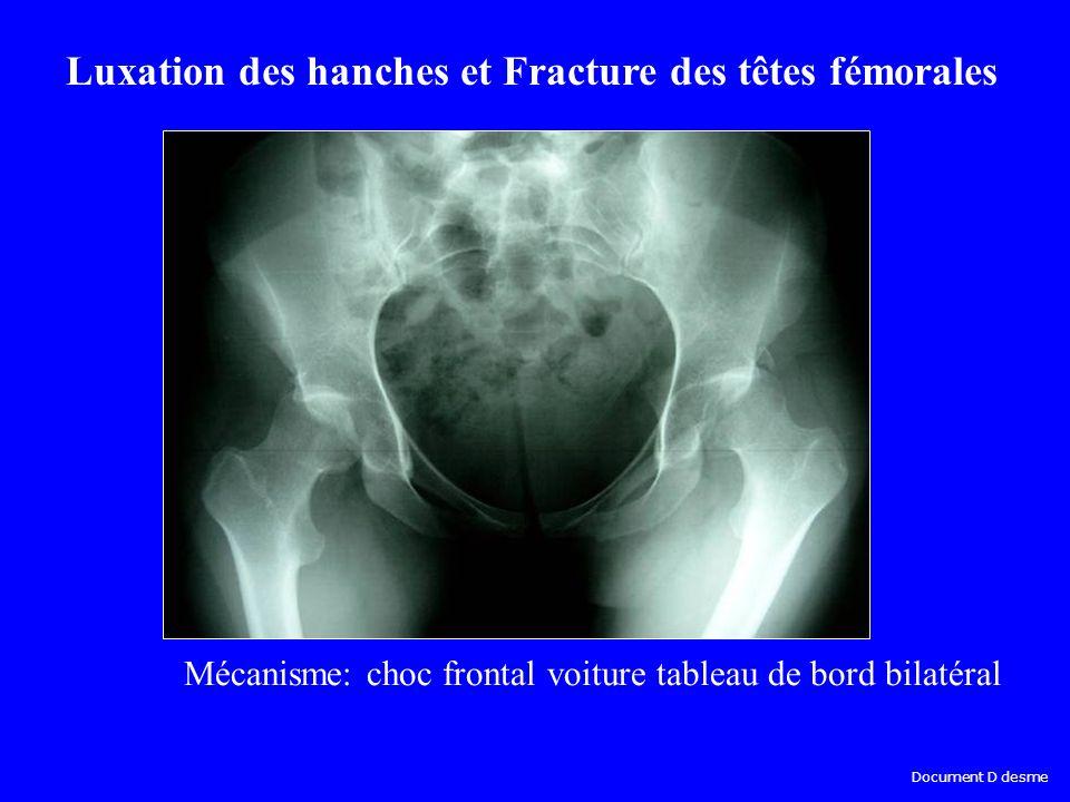Mécanisme: choc frontal voiture tableau de bord bilatéral Luxation des hanches et Fracture des têtes fémorales Document D desme