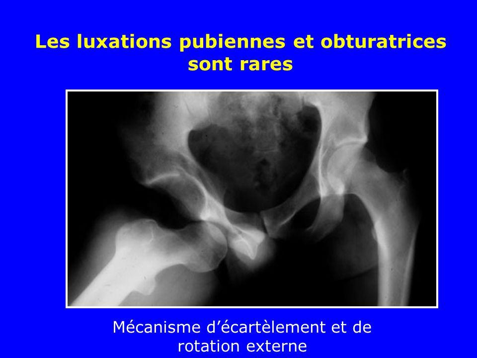 Luxations postérieures iliaques ou ischiatiques Les plus fréquentes Traumatisme par choc direct sur le genou, la hanche étant en flexion et adduction (accident du tableau de bord)