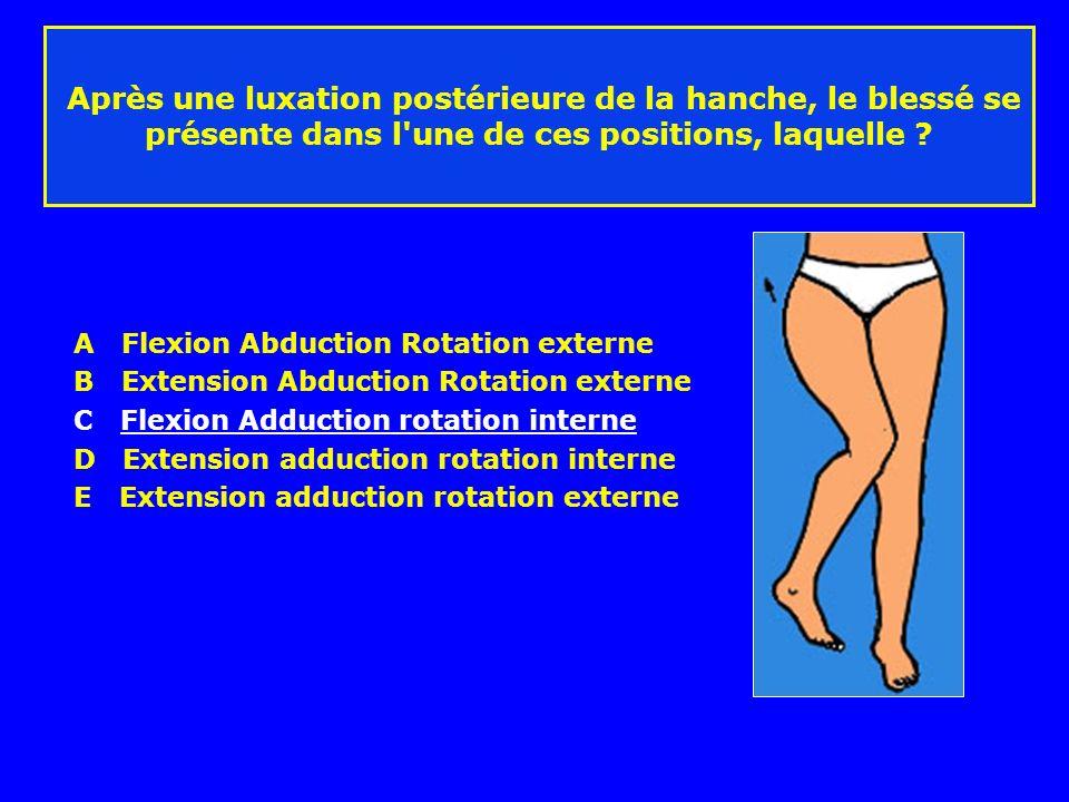 Après une luxation postérieure de la hanche, le blessé se présente dans l'une de ces positions, laquelle ? A Flexion Abduction Rotation externe B Exte