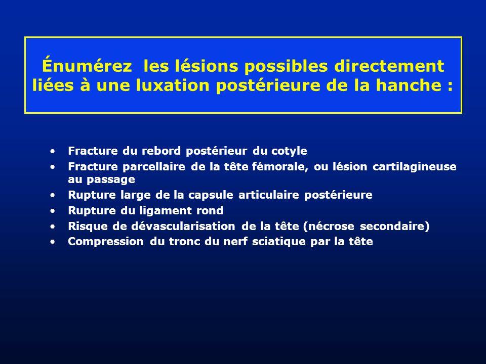 Fracture du rebord postérieur du cotyle Fracture parcellaire de la tête fémorale, ou lésion cartilagineuse au passage Rupture large de la capsule arti