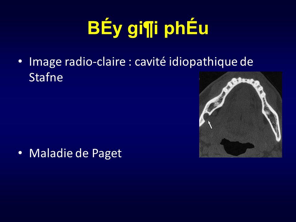 BÉy gi¶i phÉu Image radio-claire : cavité idiopathique de Stafne Maladie de Paget