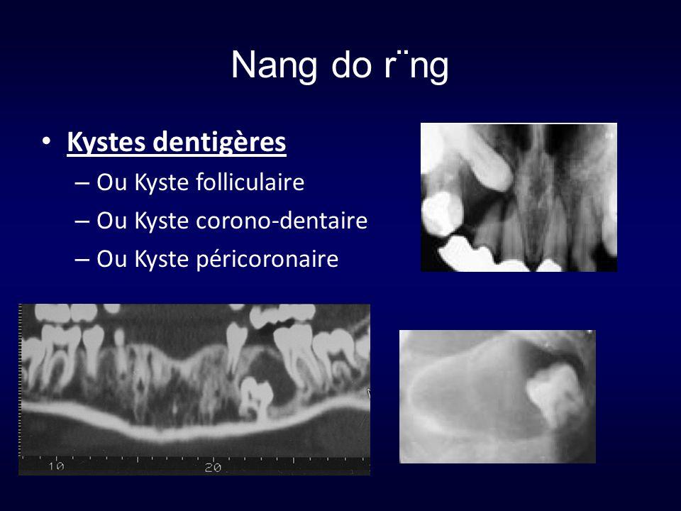 Nang do r¨ng Kystes dentigères – Ou Kyste folliculaire – Ou Kyste corono-dentaire – Ou Kyste péricoronaire