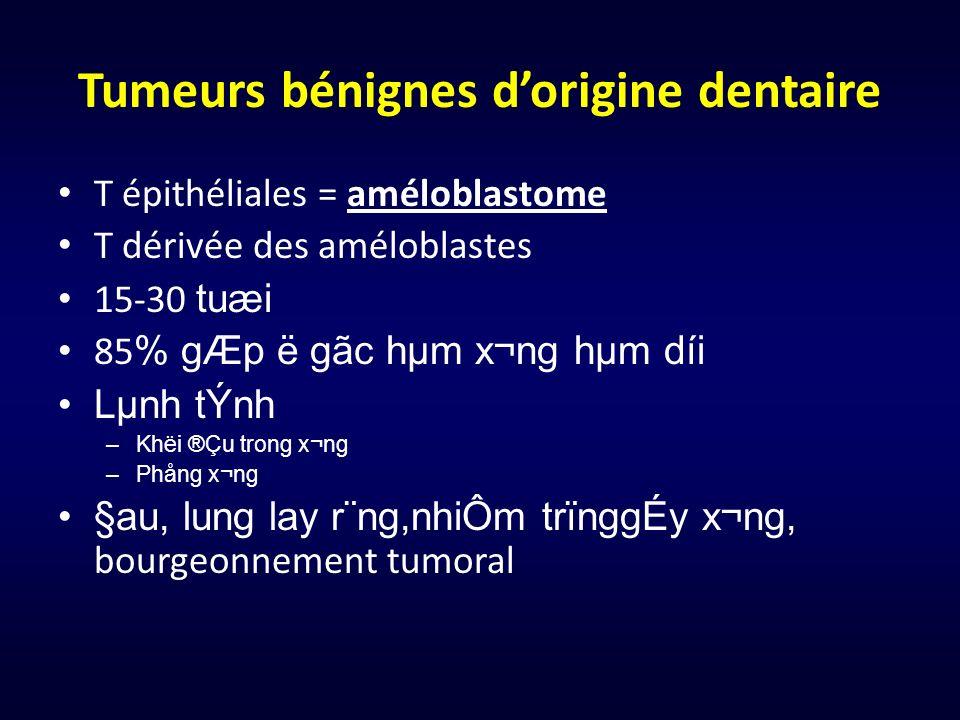 Tumeurs bénignes dorigine dentaire T épithéliales = améloblastome T dérivée des améloblastes 15-30 tuæi 85 % gÆp ë gãc hµm x¬ng hµm díi Lµnh tÝnh –K