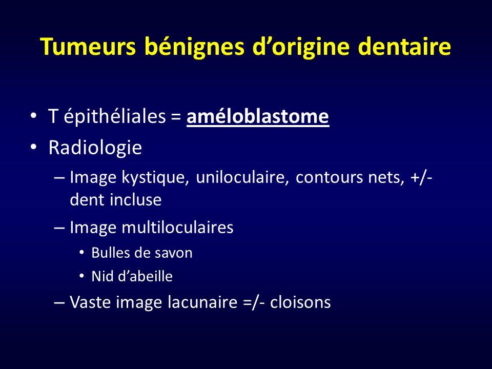 Tumeurs bénignes dorigine dentaire T épithéliales = améloblastome Radiologie – Image kystique, uniloculaire, contours nets, +/- dent incluse – Image m