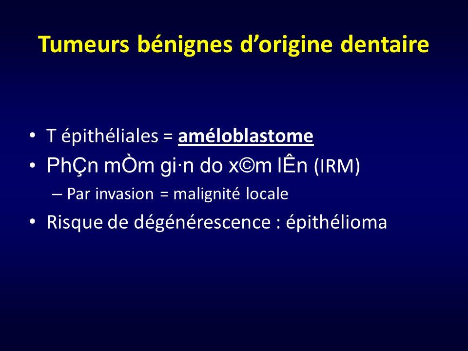 Tumeurs bénignes dorigine dentaire T épithéliales = améloblastome PhÇn mÒm gi·n do x©m lÊn (IRM) – Par invasion = malignité locale Risque de dégénéres