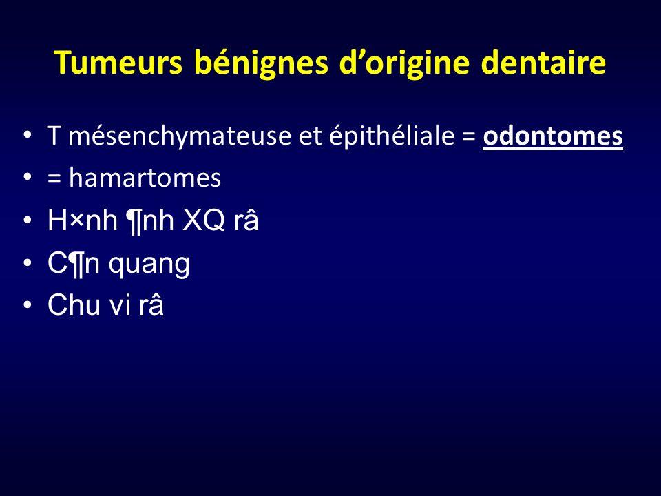 Tumeurs bénignes dorigine dentaire T mésenchymateuse et épithéliale = odontomes = hamartomes H×nh ¶nh XQ râ C¶n quang Chu vi râ