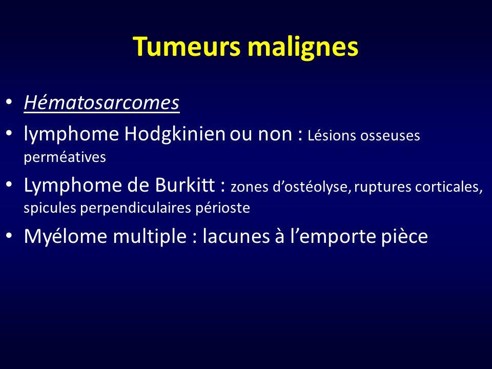 Tumeurs malignes Hématosarcomes lymphome Hodgkinien ou non : Lésions osseuses perméatives Lymphome de Burkitt : zones dostéolyse, ruptures corticales,