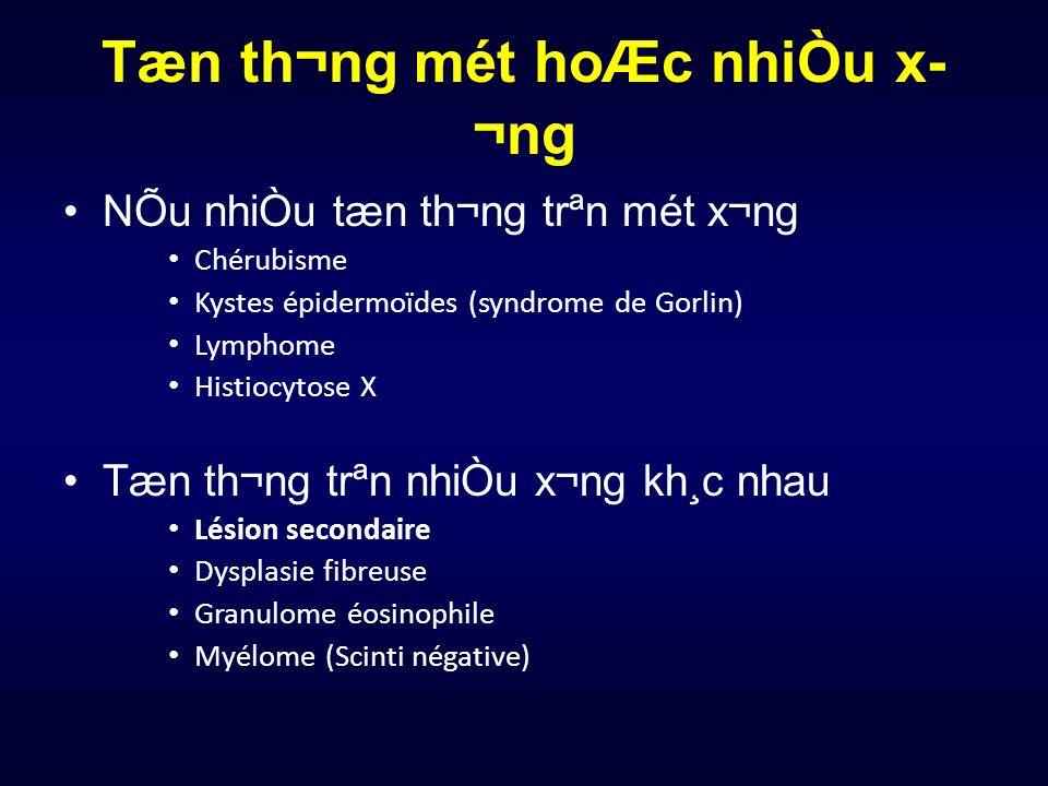 Tæn th¬ng mét hoÆc nhiÒu x ¬ng NÕu nhiÒu tæn th¬ng trªn mét x¬ng Chérubisme Kystes épidermoïdes (syndrome de Gorlin) Lymphome Histiocytose X Tæn t